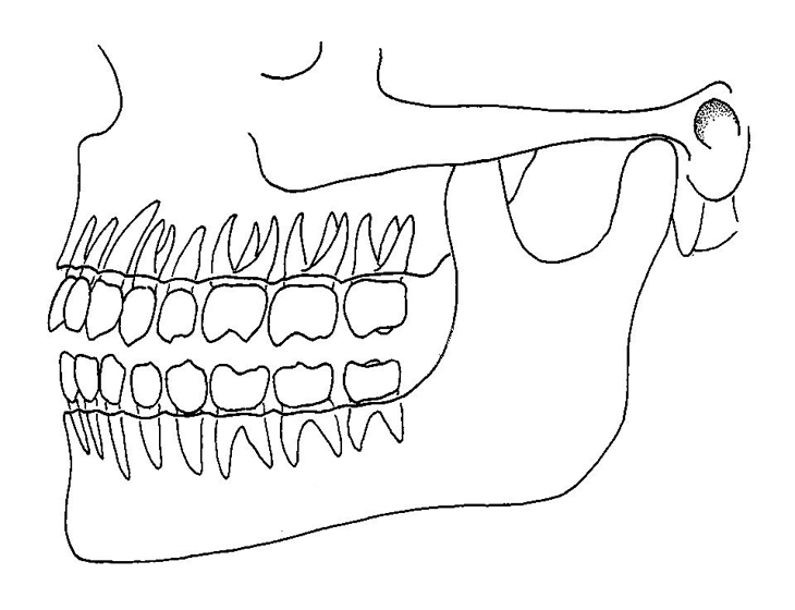 position of teeth in jaws
